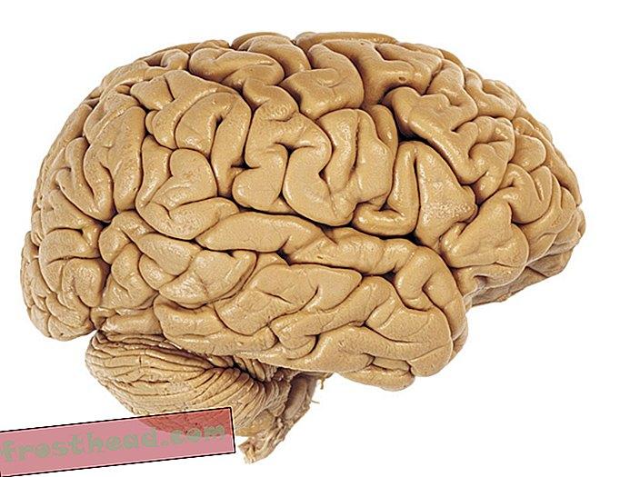 En 24-årig kvinde opdagede lige, at hun havde et hul i hendes hjerne hele sit liv